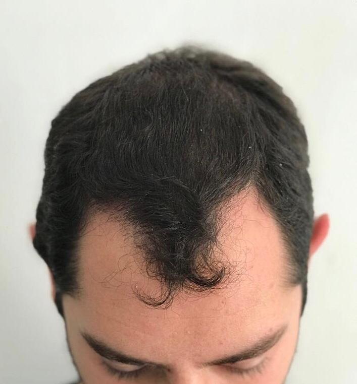 hair-loss-young-man