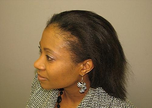 Female hair surgery
