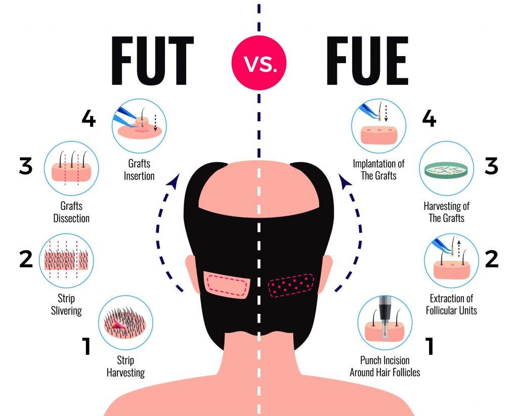 fut-vs-fue